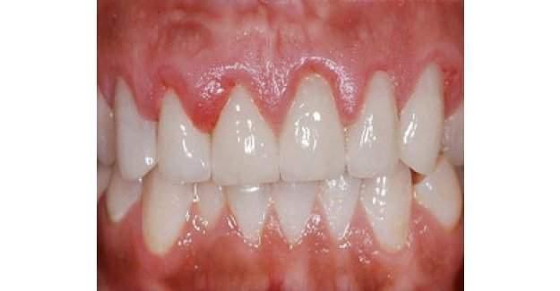 Stresliyken sakın dişlerinizi sıkmayın!