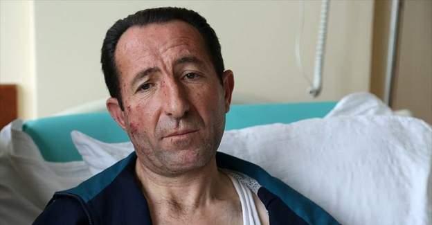 Ankara patlamasındaki şoför yaralı halde yolculara yardım etti