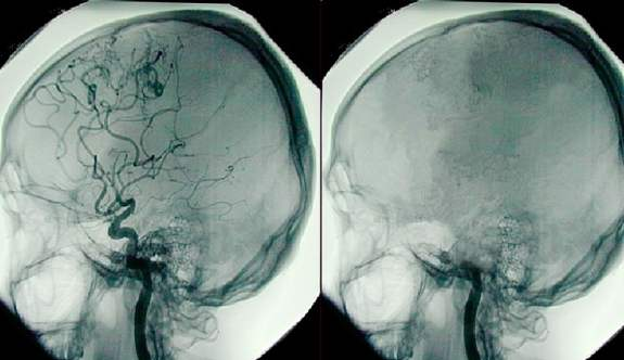 Beyin ölümü nedir, belirtileri nelerdir?
