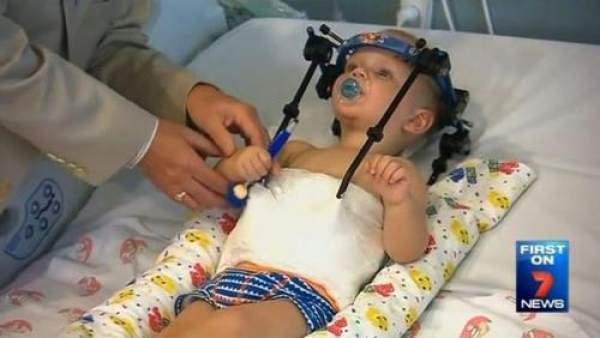Başı içten kopan bebek yaşama tutunmayı başardı