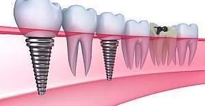 Diş İmplantları Hakkında Sıkça Sorulan Sorular Nelerdir?