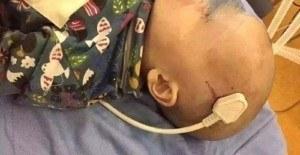 Küçük çocuğun beynine fiş saplandı