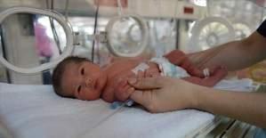 Prof. Dr. Biri: Sağlıklı bebek için sezaryen doğum yanlış algı