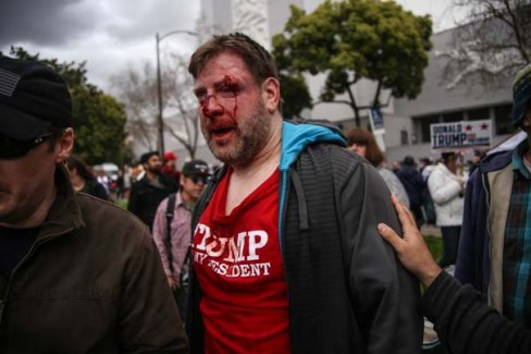 ABD'de Trump yürüyüşü kanlı bitti