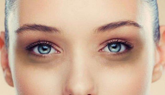 Bu doğal kürlerle göz altı morlukları yok oluyor