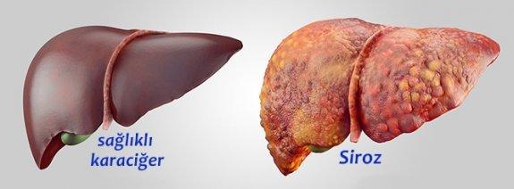Alkole bağlı karaciğer yağlanması, Alkol kaç yılda siroz yapar?