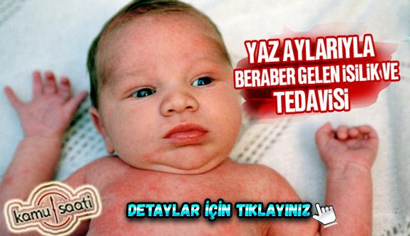 Bebeklerde isilik nasıl geçer? Nasıl Tedavi Edilir?