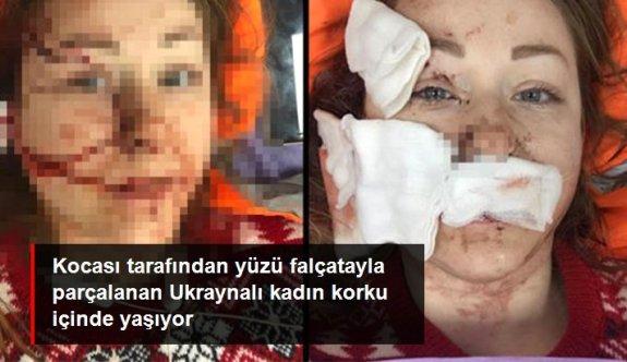 Boşanmak istediği kocası tarafından yüzü falçatayla kesilen Ukraynalı kadın: Cezaevinden erken çıkar diye çok korkuyorum
