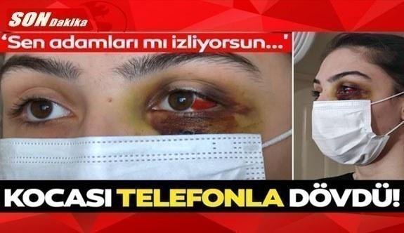 Eşinden telefonla dayak yiyen kadın isyan etti: Can güvenliğim yok!