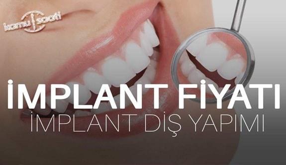 İmplant diş nedir, diş implantı ne demektir? İmplant diş fiyatları? (2021)