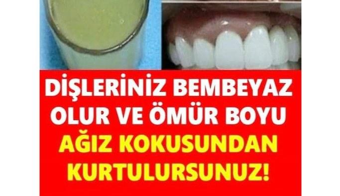 Evinizde bulunan malzemeler ile basit bir şekilde beyaz dişlere sahip olmak imkansız değil işte formülü