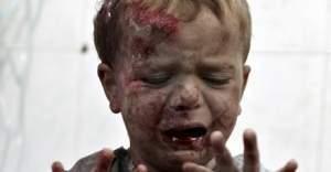 Suriye'de ki insani durum vahim boyutlara ulaştı